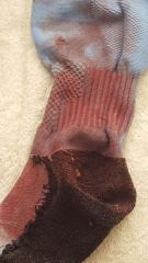 Closeup Tog's Sock